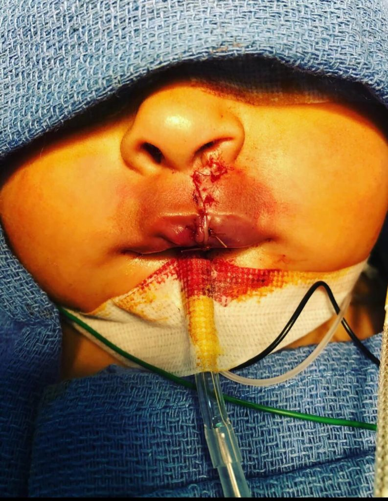 cleft-lip-after-793x1024