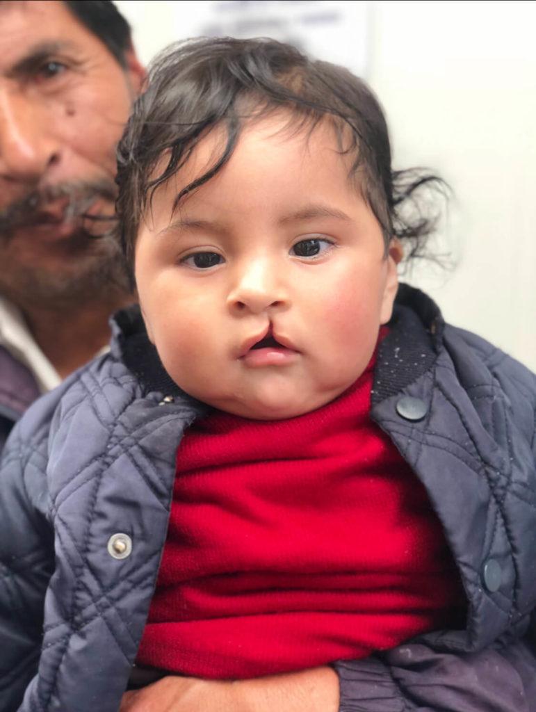 cleft-lip-child-771x1024