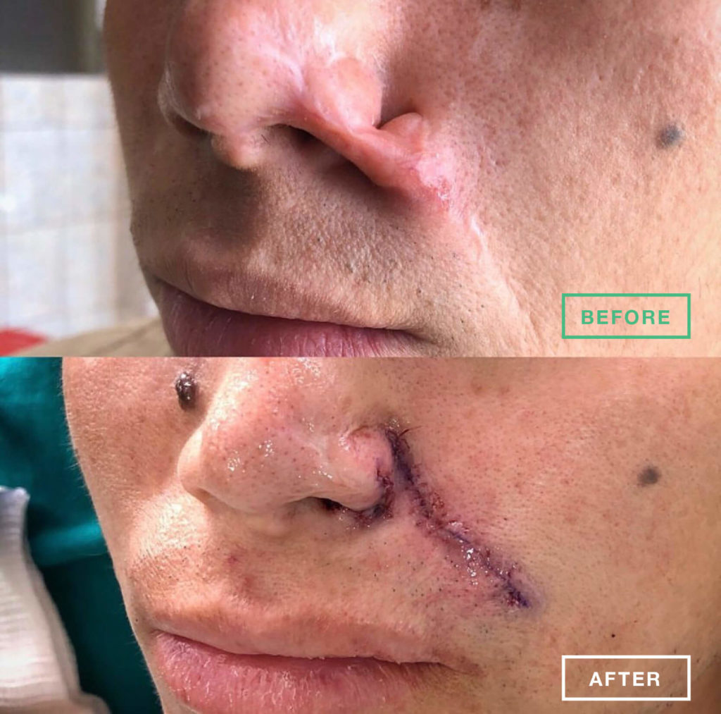 jose-before-after@1.5x-1024x1013